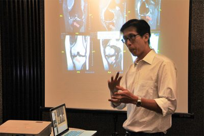 Subchondroplasty   An Alternative to Knee Replacement Surgery